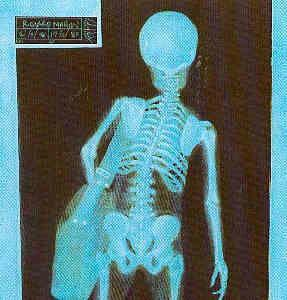 x-ray-of-woman-carrying-a-big-purse1