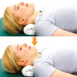 correcting forward head posture